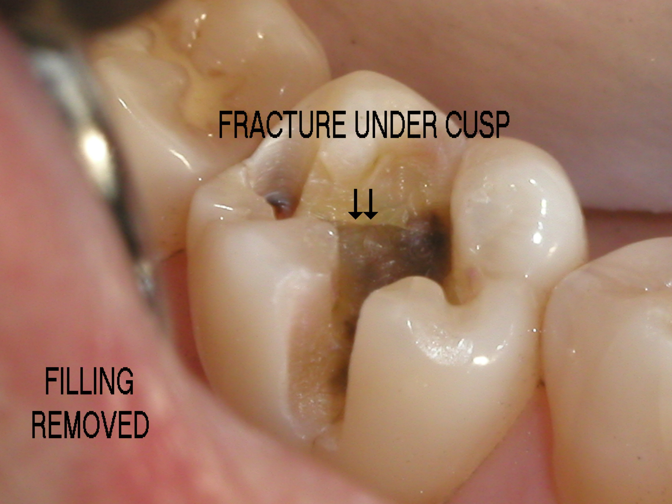 Composite fillings docsatterfields blog good questions on replacing amalgams solutioingenieria Images